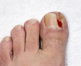 Ingrown Toenails Treatment | Foot Doctor Dayton, OH 45402