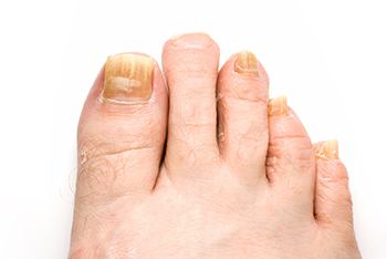 Fungus Toenails Treatment | Foot Doctor Dayton, OH 45402